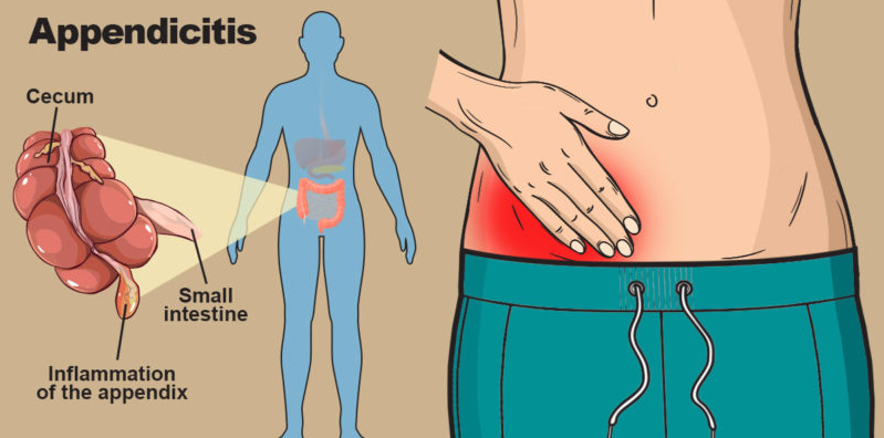 6 Things You Need to Know About Your Appendix-By Dr. Vaibhav Kapoor