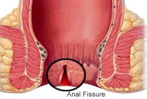 best doctor for fissure in gurgaon