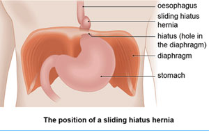 laparoscopic hernia surgery in gurgaon