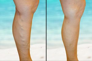 varicose veins treatment in gurgaon