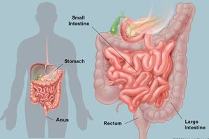 intestine surgery gurgaon